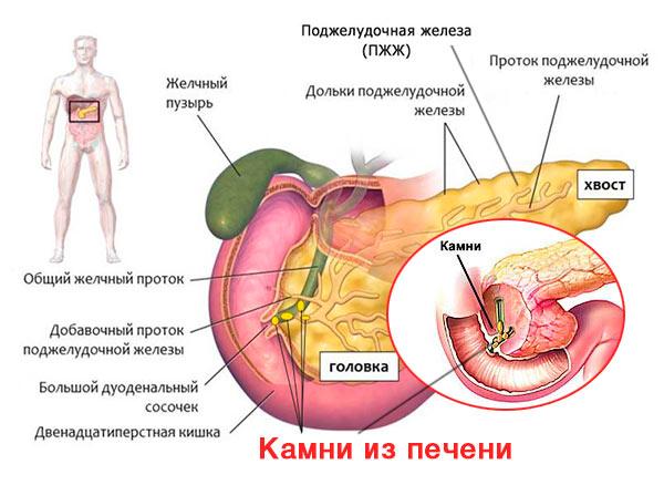 Причины панкреатита - камни в печени