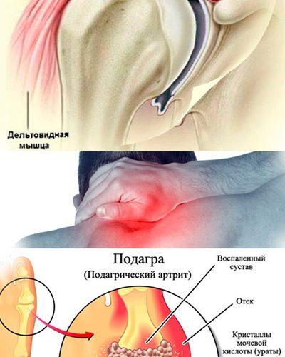 Ренокс Депосалт - убираем камни и соли из организма