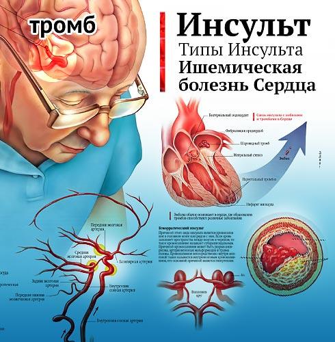 Лечение Инсульта и Ишемии