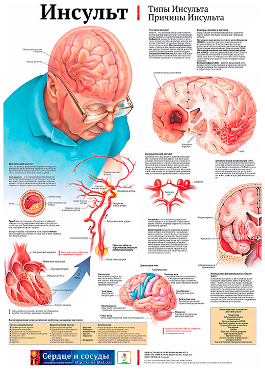 cardiovascular accident or stroke