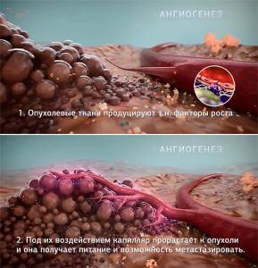 Ангиогенез - раковая опухоль получает питание, формируя кровяные каппиляры