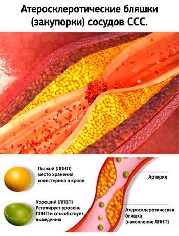 Хотестерин и бляшки сосудов. Атеросклероз и инсульт.