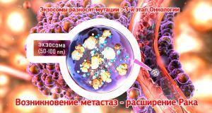 Развитие рака - разрастание онко клеток и метастазы