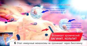 Цистит, Кольпит, Вагинит, Кандидоз 6 этап развития - хронический