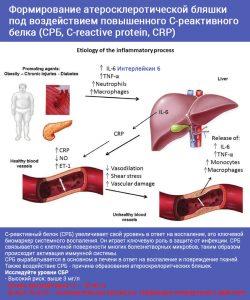 С реактивный белок - анализы